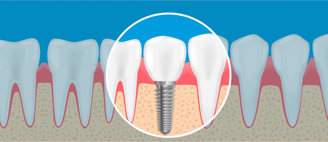 Você sabe como funciona o implante dentário?